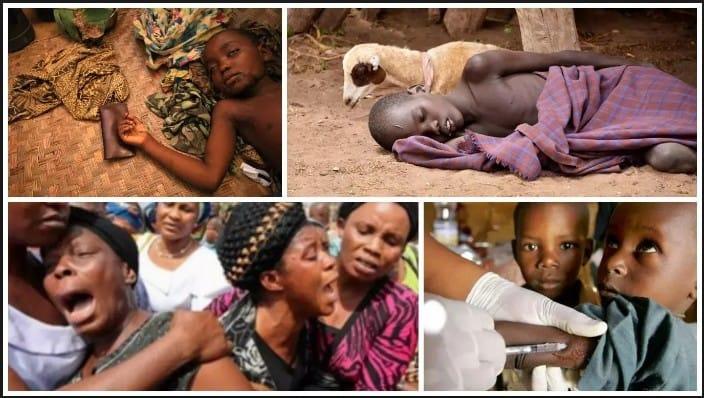 21 people killed by Meningitis in Sokoto, Nigeria