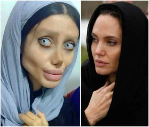 Iranian Teenager Undergoes 50 Surgeries to Look Like Angelina Jolie