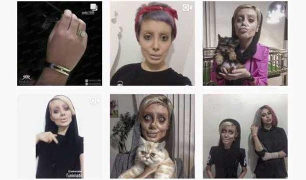Iranian Teenager Undergoes 50 Surgeries To Look Like