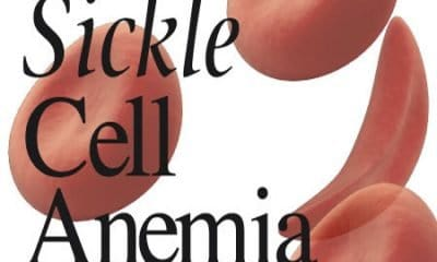Sickle Cell Patients Should Take Water Often To Replace Lost Cells - Expert
