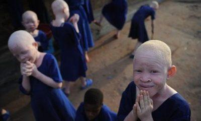Five-Year-old Albino Girl, Kidnapped, Beheaded For Rituals In Mali