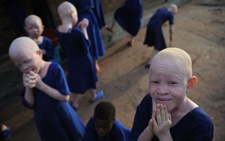 Five-Year-old Albino Girl, Kidnapped, Beheaded For Rituals In Mali