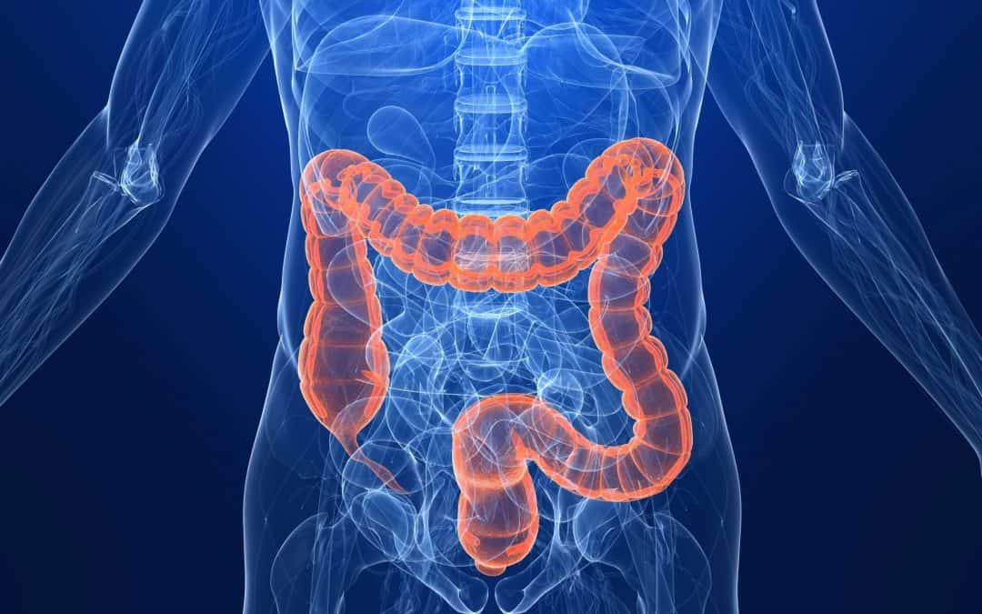 Colon Cancer Screening Should Begin At 45 – American Cancer Society