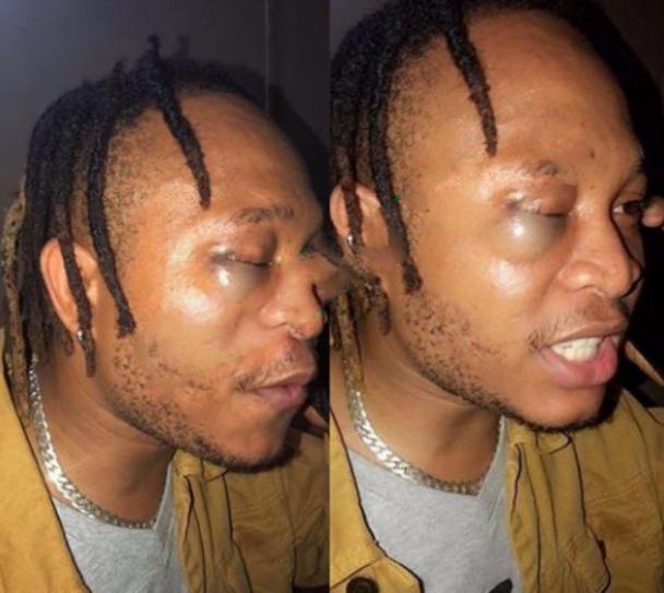 Former YBNL Singer, Viktor, Allegedly Beaten By Police | Nigeria News