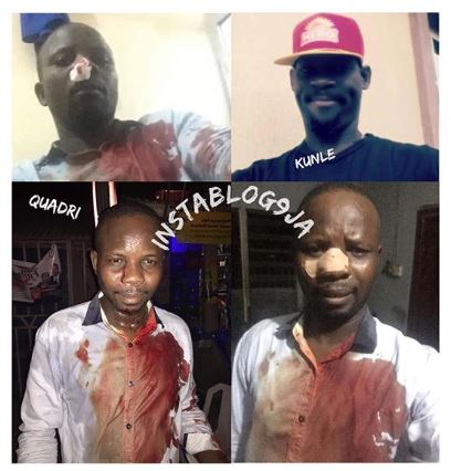 APC supporter - Buhari, APC Supporter Attacked Over Facebook Post