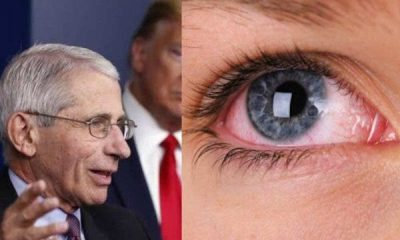 Dr Fauci Gives Important Advice Amid Evidence Coronavirus Can Get Into Eyes,