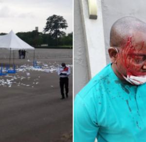 5f2cf553e58dc 300x291 - Thugs Invade Nigerian Medical Association, Injure Many Doctors
