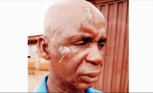 Driver Assaulted 300x182 - Police Beats 54-Year-Old Driver, Collect Bribes With PoS Machines