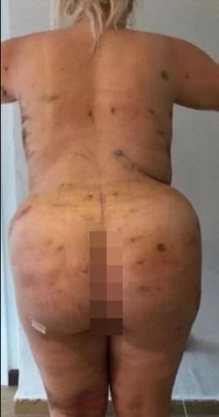 5f4e266735fb1 - Photos: Woman's Butt Looks Like A Cone Shape As Surgery Goes Wrong