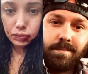 5fb5366193626 300x254 - American Man Beats Woman To Stupor Over Expensive Date