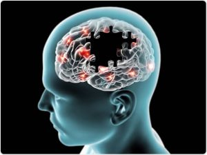 images 2020 11 30T201329.607 300x225 - Blood Test May Accurately Predict Alzheimer's Disease – Study