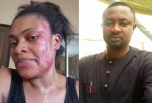 CHANNELS TV 300x204 - Domestic Violence: Channels TV Investigating Reporter's Alleged Assault On Wife