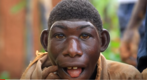 Ellie Rwanda 300x163 - Meet 21-Year-Old Man Who Feeds On Grasses From Birth – [Doc. Video]