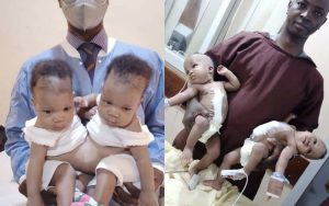 Conjoined twins 300x188 - Doctors Successfully Separate Conjoined Twins In Kwara
