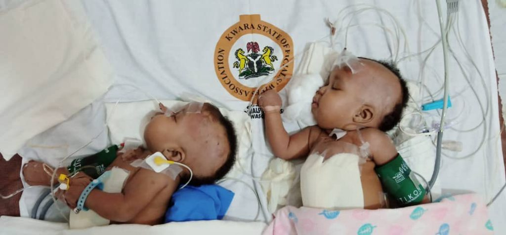 Conjoined twins2 1024x476 - Doctors Successfully Separate Conjoined Twins In Kwara