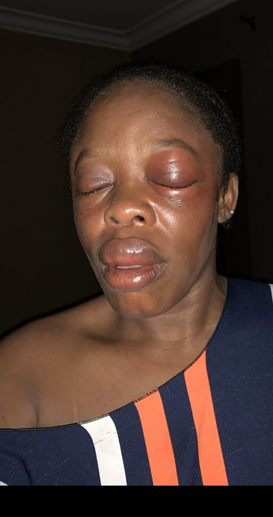 Lagos Teacher Lucky To Be Alive After Her Encounter With One-Chance Operators |Photo