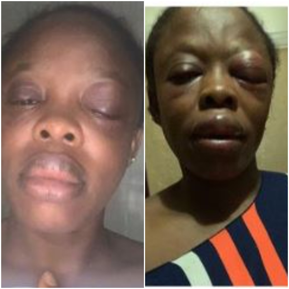 Lagos Teacher Lucky To Be Alive After Her Encounter With One-Chance Operators Photo