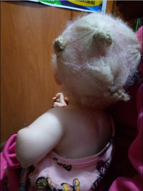 Toddler's Hand Chopped Off By Albino Hunters For Ritual |Photos