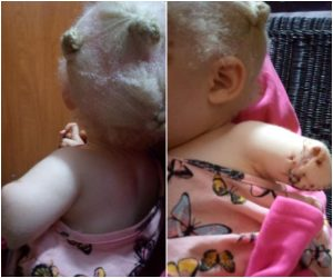 Toddler's Hand Chopped Off By Albino Hunters For Ritual