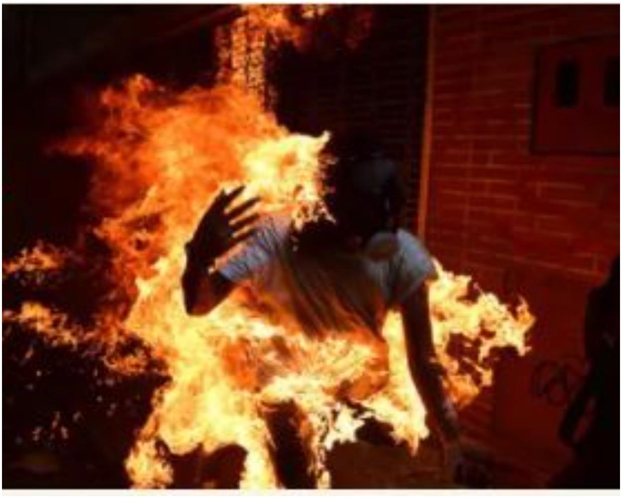 Kano student sets himself on Fire