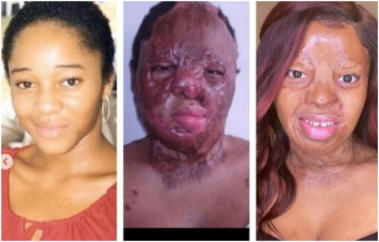 Kechi Okwuchi Shares tremendous progress