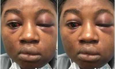 Lady Shares Traumatic Experience