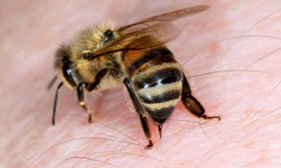 Bee Stings man